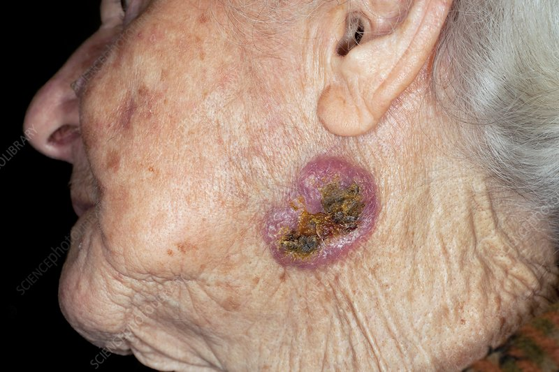 Basal cell skin cancer on the face