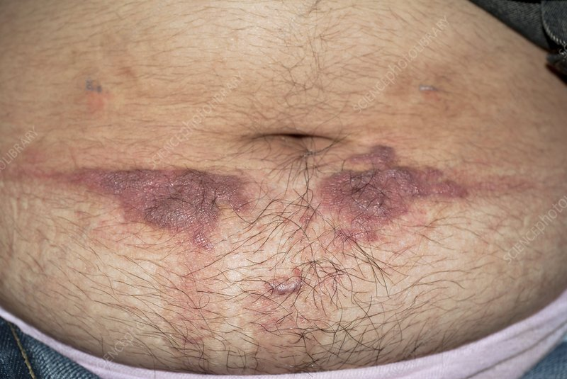 Contact dermatitis from a belt buckle