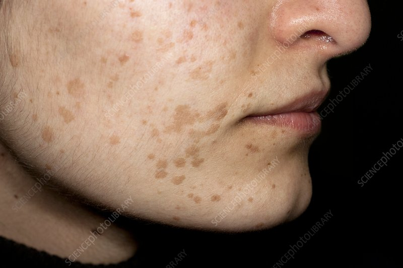 Flat Warts On The Face Stock Image C011 0354 Science Photo Library