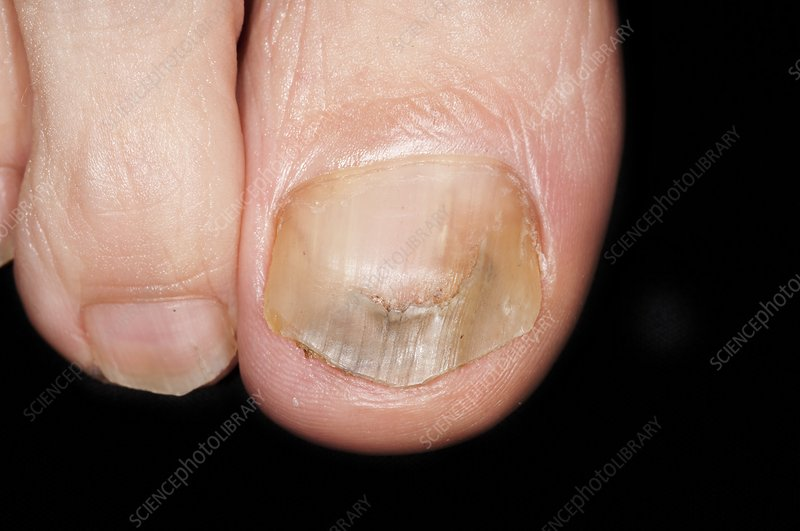Treated onychomycosis nail infection