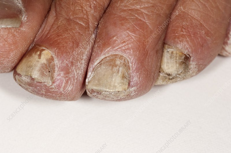 Fungal infection of the toenails