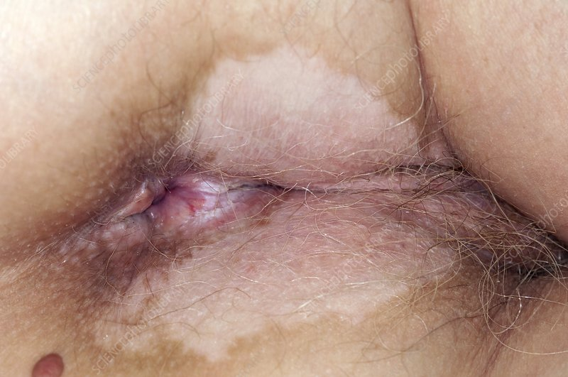 Lichen sclerosis around the anus