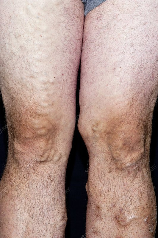 Varicose veins in the legs