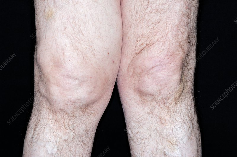 Swollen knee in osteoarthritis