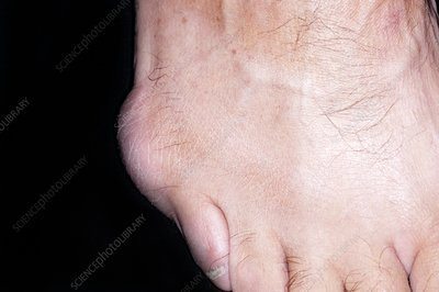 Bursitis of the fifth toe