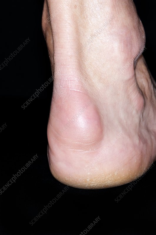Bursitis of the heel of the foot
