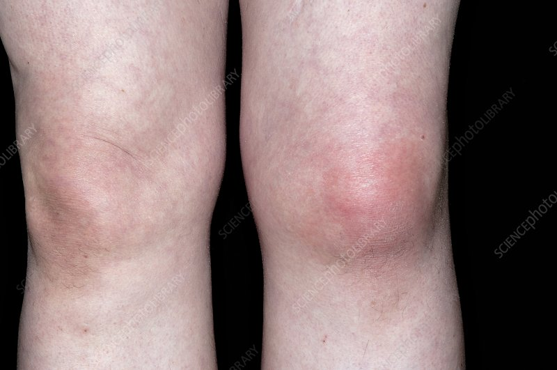 Gout of the knee joint