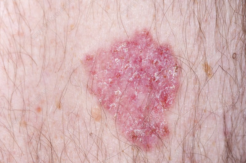 Basal cell skin cancer spread