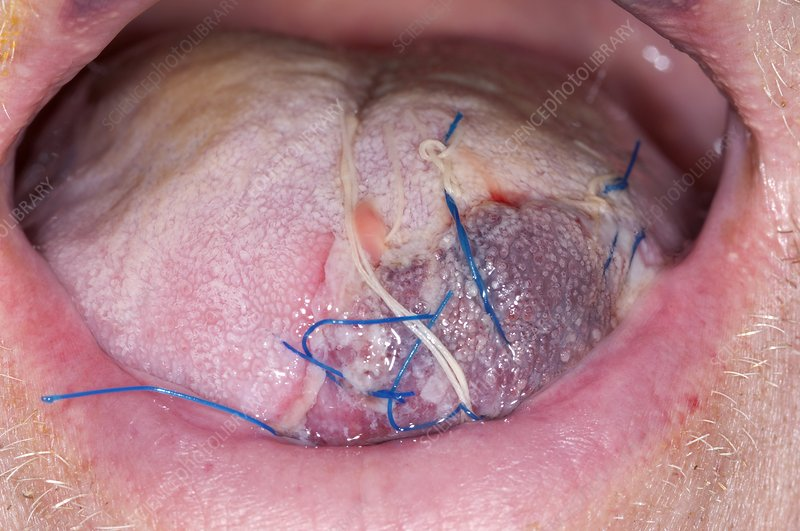 Sutured laceration of the tongue