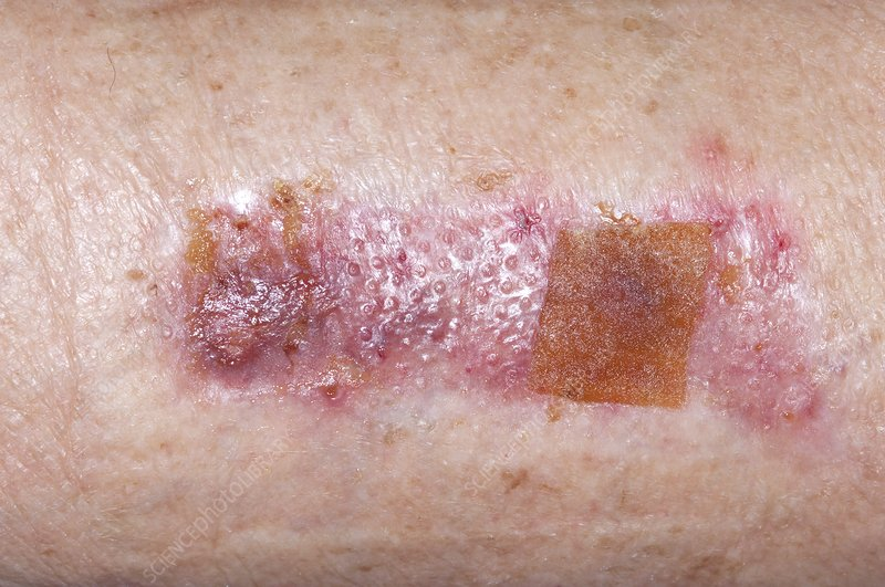 Skin graft donor site on the thigh