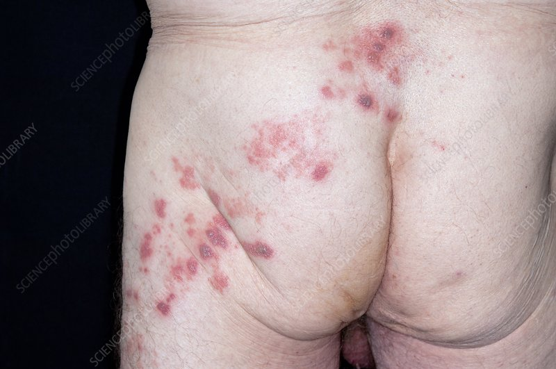 Shingles rash on the buttock