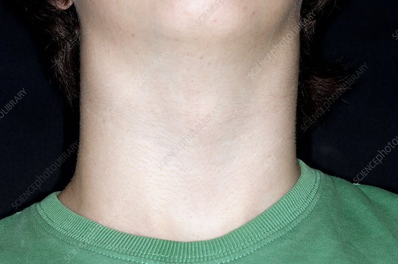 Swollen neck in glandular fever