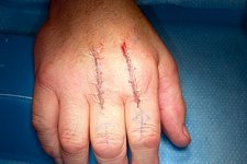 Knuckle joint replacement surgery