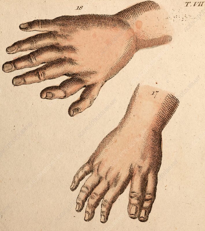 Extra fingers - polydactyly illustration