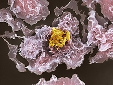 TB bacteria infecting macrophages, SEM