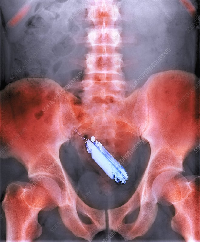 Mobile phone in a person's rectum, X-ray