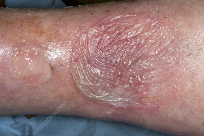 Skin blister from bacterial infection