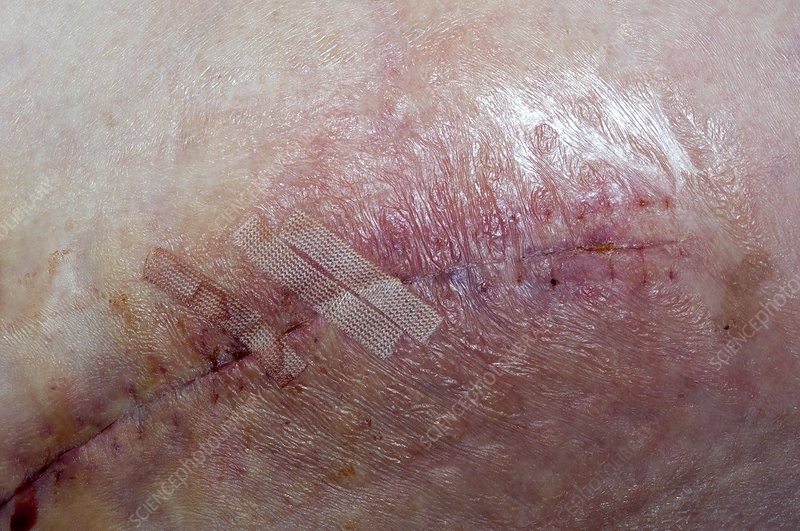 Wound infection after hip replacement