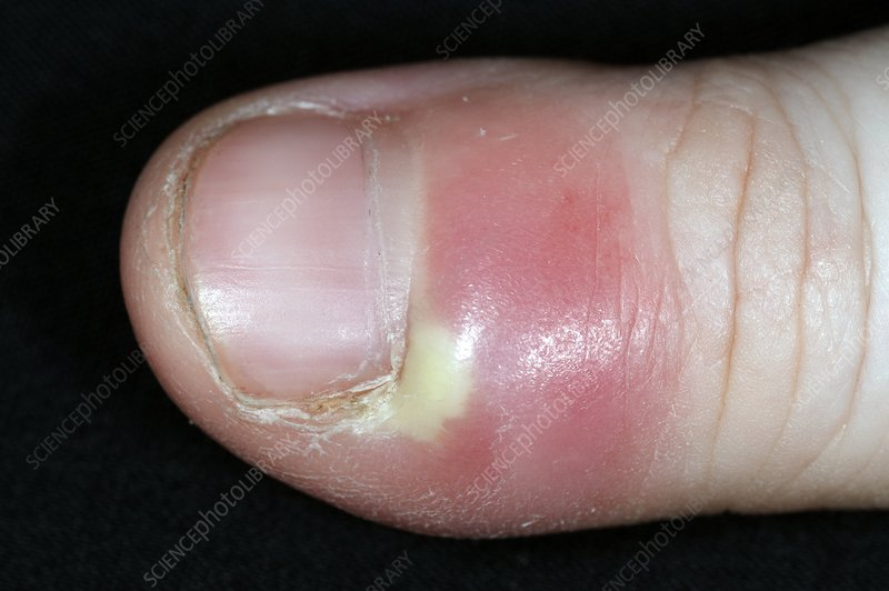 Paronychia infection of the thumb