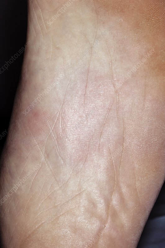 Thermal urticaria on the foot