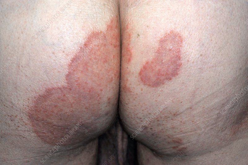 Tinea infection on the buttocks