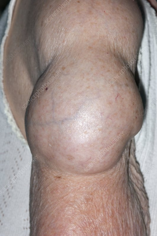 Lipoma on the upper arm