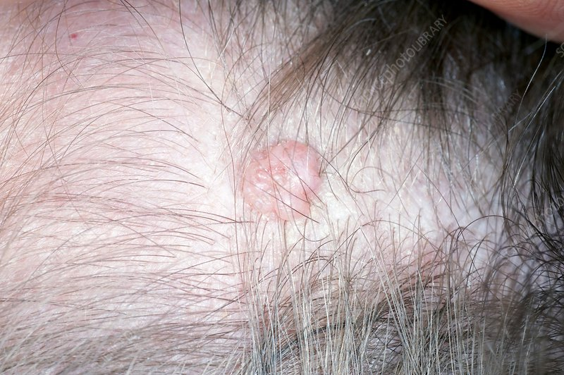 Intradermal mole (naevus) on the scalp
