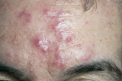 Acne rosacea on the forehead