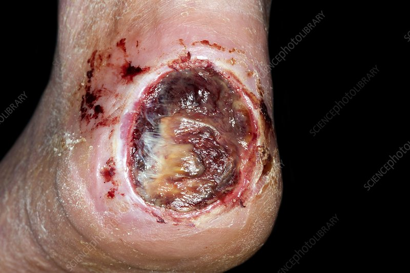 Diabetic foot with large heel ulcer