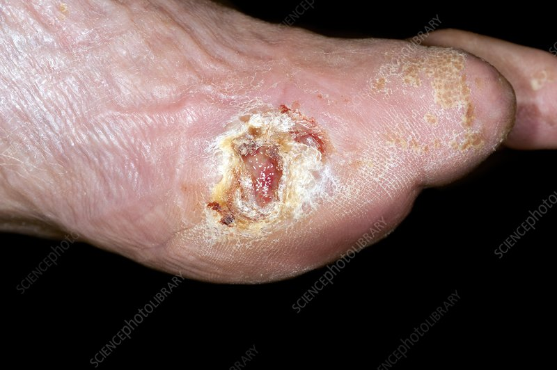 Diabetic foot with ulcer