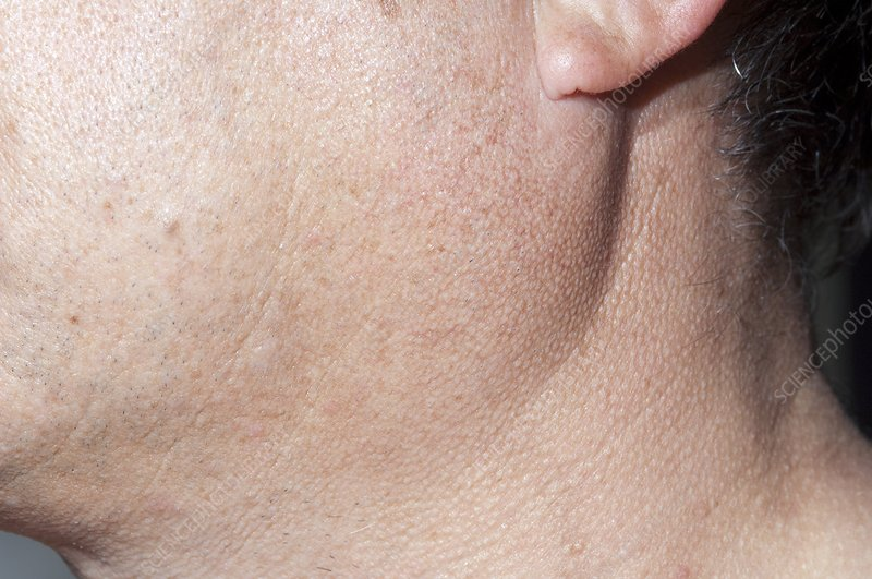 Parotid gland enlargement