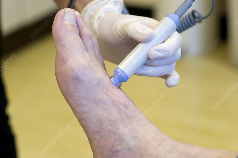Foot pulse test for a diabetic