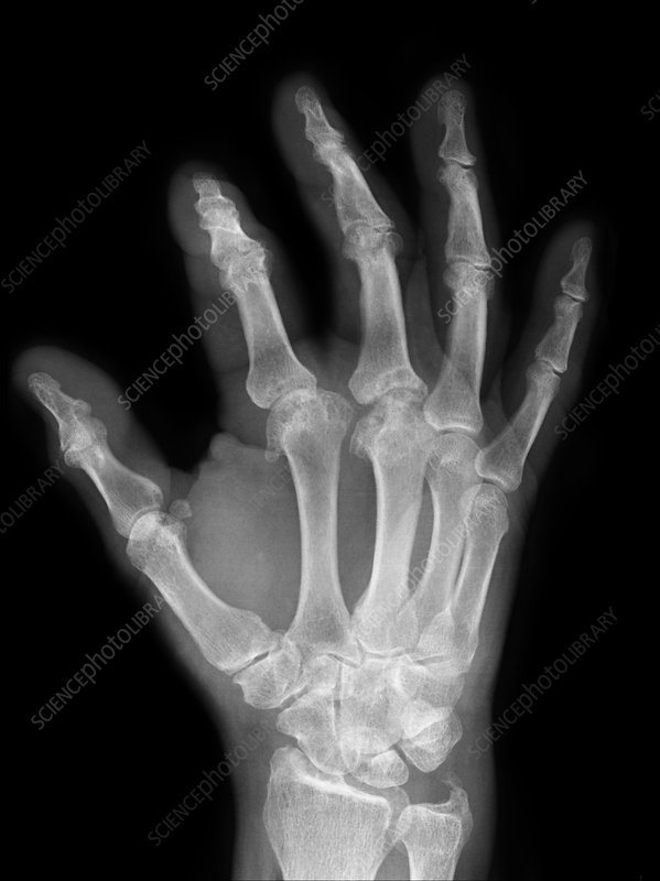 Osteoarthritis of the fingers, X-ray
