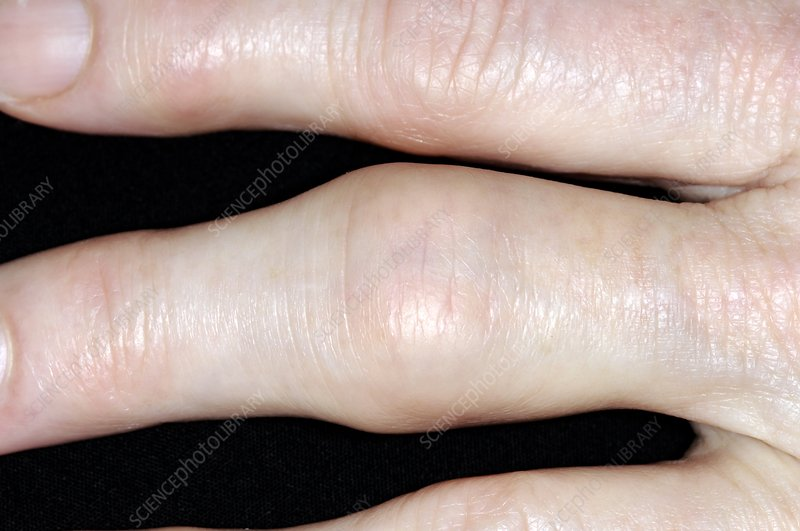 Osteoarthritis of the finger
