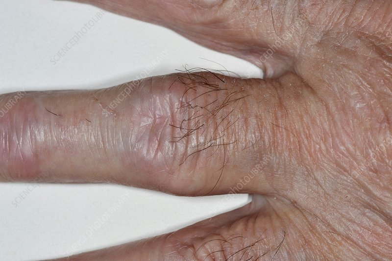 Rheumatoid arthritis of the finger