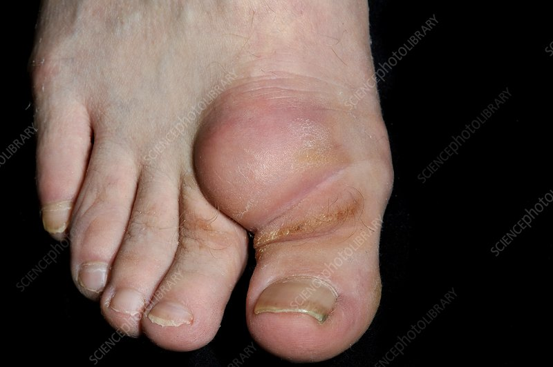 Ganglion on the dorsum of the toe