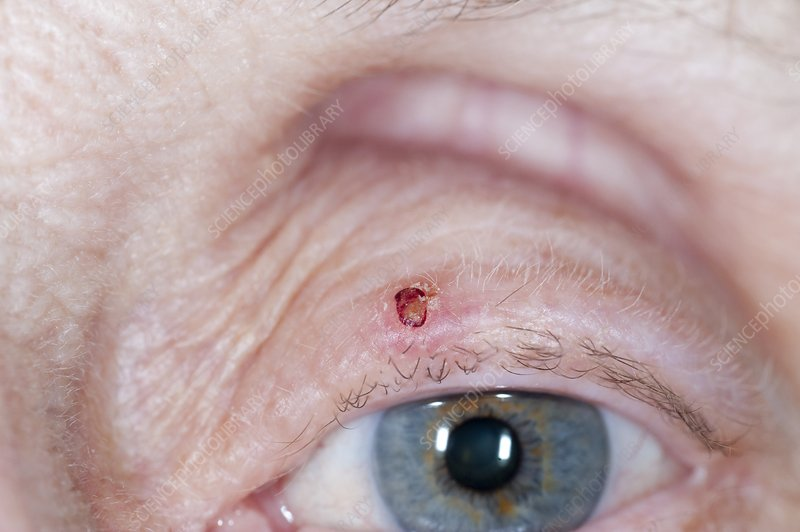 Basal cell skin cancer on the eyelid