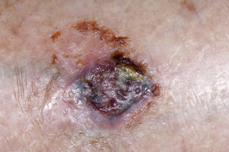 Basal cell skin cancer on the leg