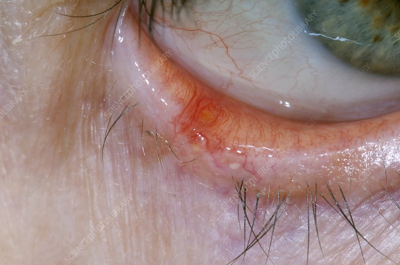Lesion on the lower eyelid