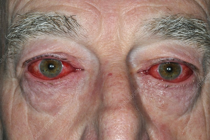 Adenoviral conjunctivitis of the eyes