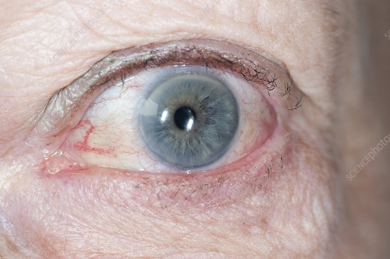 Bulging eye in hyperthyroidism