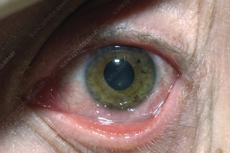 Herpes simplex infection of the eye
