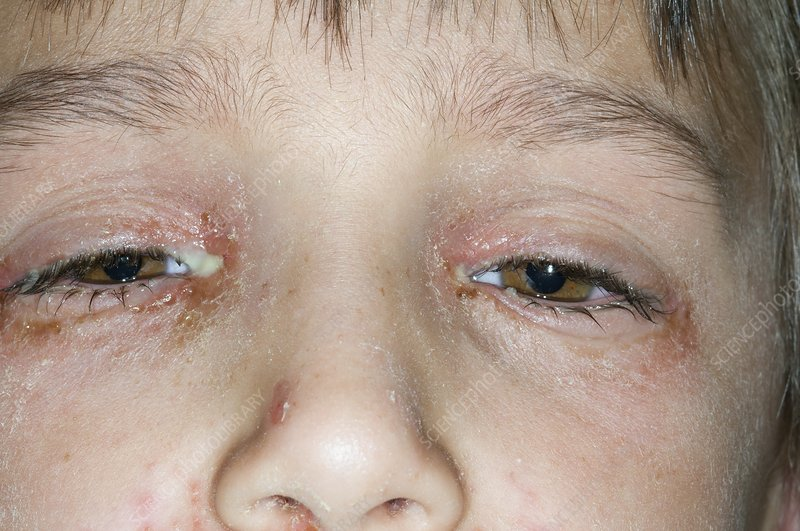 Bacterial conjunctivitis of the eyes