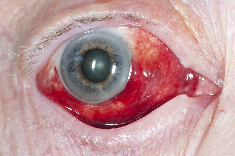 Subconjunctival haemorrhage of the eye