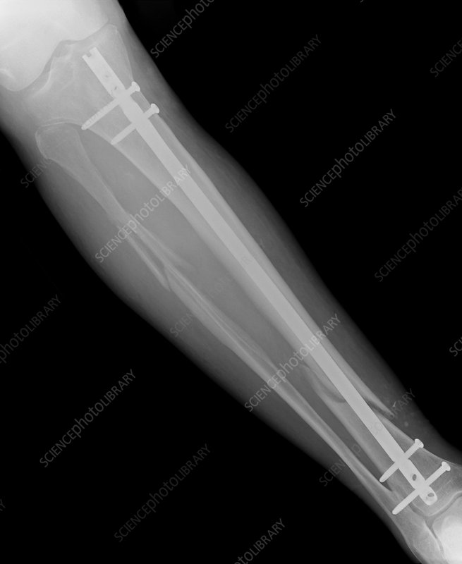 Fixed leg fracture in osteoporosis, X-ray