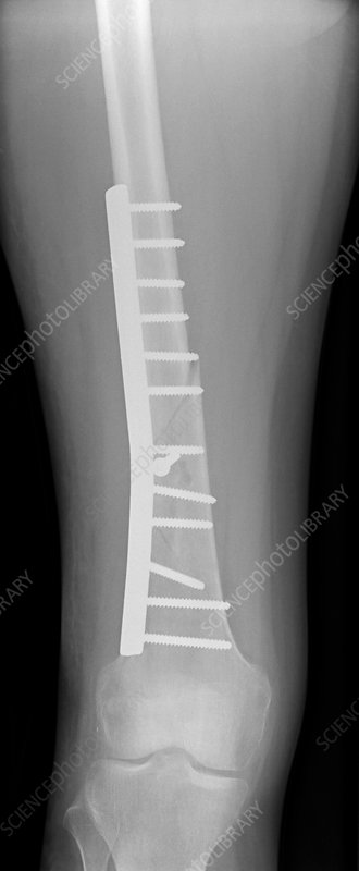 Pinned femur fracture, X-ray