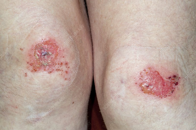 Grazed knees after fall from a horse