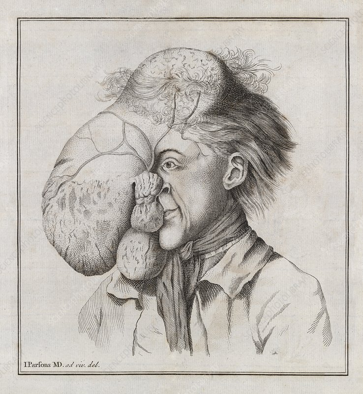 Large tumour of the head, 18th century