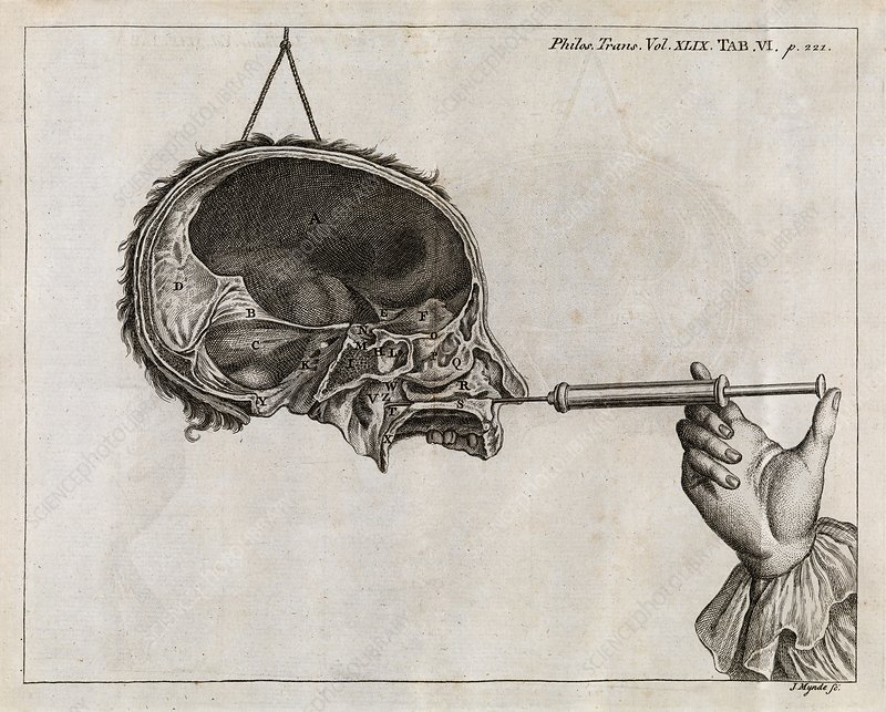Eustachian tube syringing, 18th century