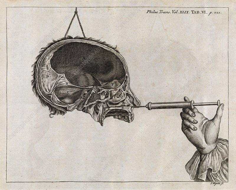 Eustachian tube syringing, 18th century